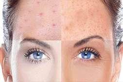 Крем Meduskin подходит для любого типа кожи.
