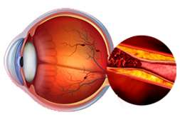 Биокулист предотвращает катаракту, глаукому, дистрофию сетчатки.