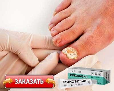 Заказать Миковизин на официальном сайте.