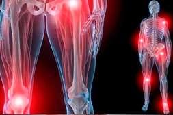 Артросет предотвращает заболевания опорно-двигательного аппарата.