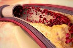 Состав Cardiosoft предупреждает атеросклероз.