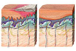 Псориден фито заживляет повреждения кожи.