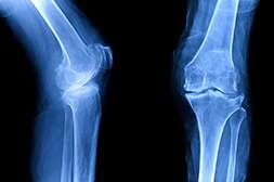 Sinaktiv останавливает деформацию суставов.